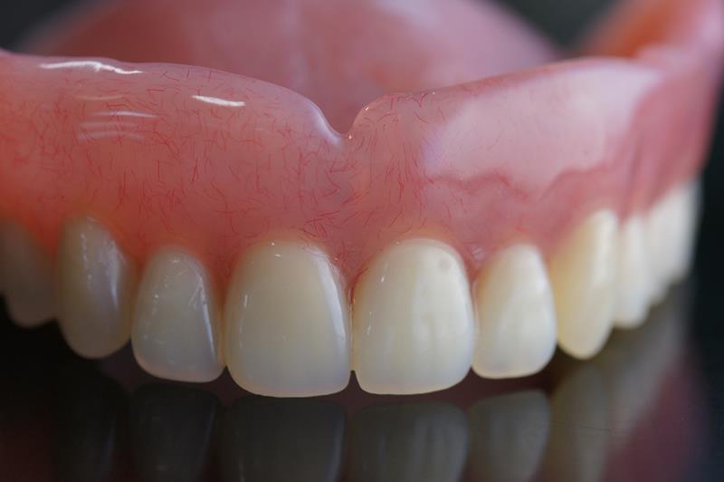 The True History Of False Teeth Silverado Family Dental